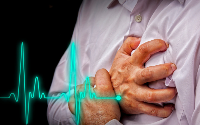 Riesgos cardiovasculares en momentos de crisis