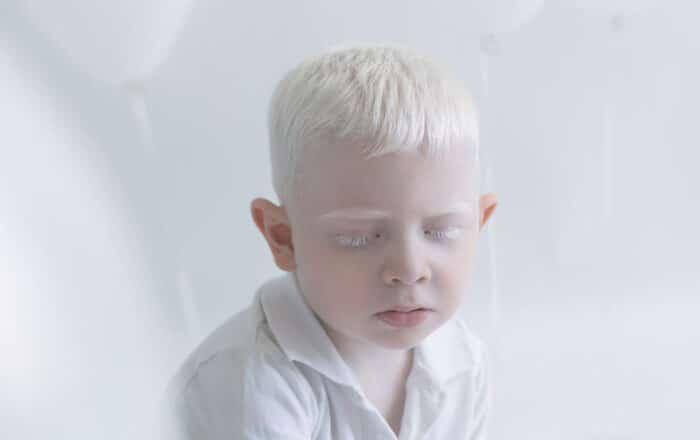Albinismo: una vida huyendo del sol